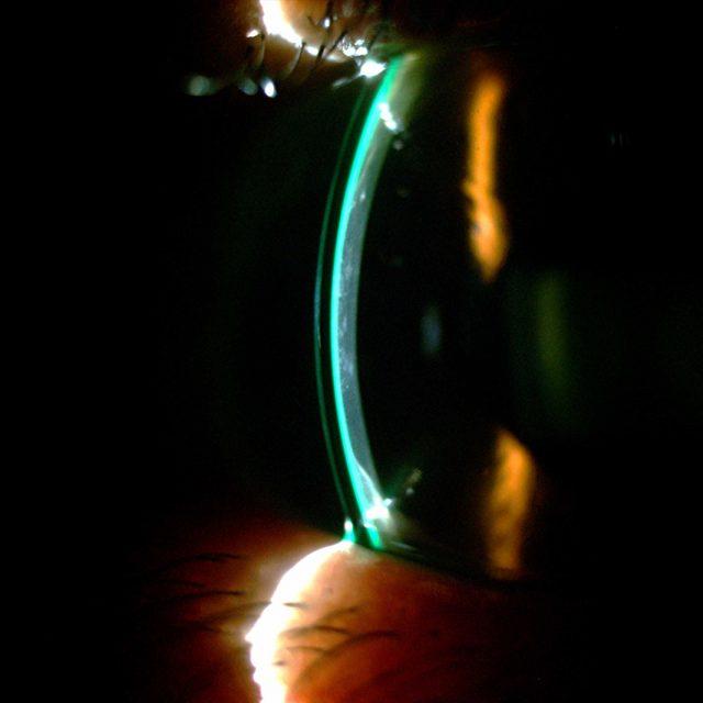 Scleral Lens RA Transplant 1280×853