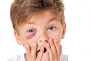 young child with a eye injury at All Eyes Vision Care in Clarksville, TN