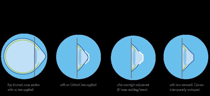 OrthoK lenses