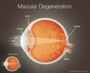 macular degeneration care Spruce Grove