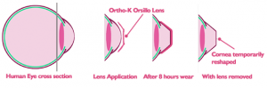 Orthokeratology Hollow Glen | Ortho-K Hollow Glen