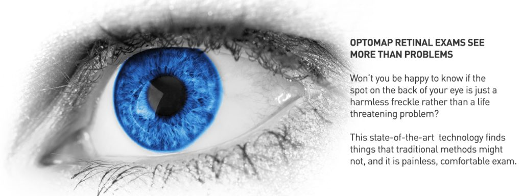 Optomap2-Technologies%201280x480-1024x384