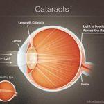 cataract illustration