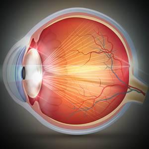 Eye Gallery Catarcts