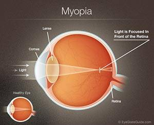 nearsightedness diagram