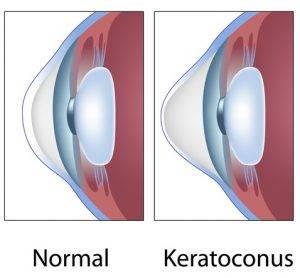 Keratoconus-final