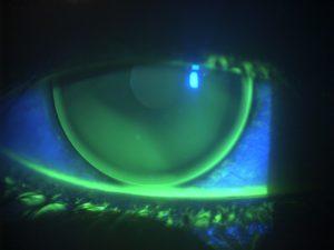 keratoconus RGP Lens