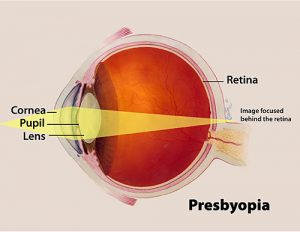 eye12 72 PresbyopiaREV