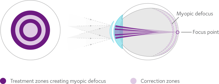 misight how contact lenses work (1)