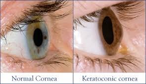 keratoconus 1
