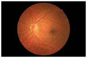glaucoma_detection_
