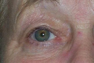 Oculoplastics Surgery Thumbnail