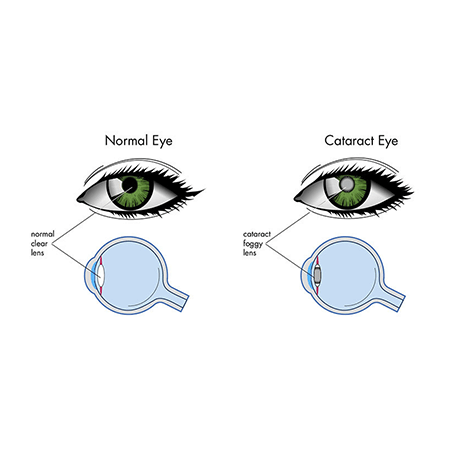 cataract eye crossection.png