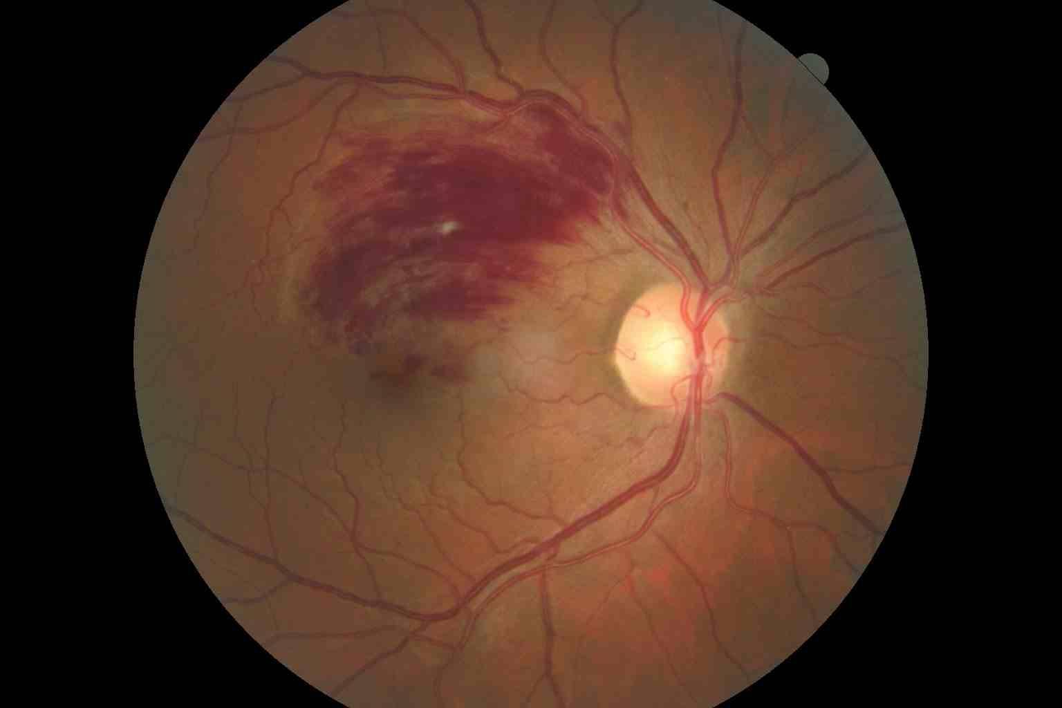 example of retinal photo