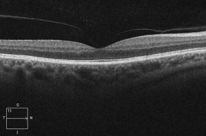 normal macula oct scan compressed