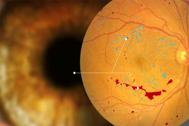 Digital Retinal Imaging in Maple Ridge, BC