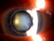 cataract_sm
