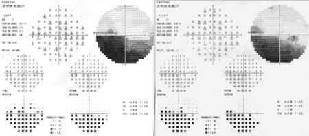 Visual Field Testing eye exam burlington