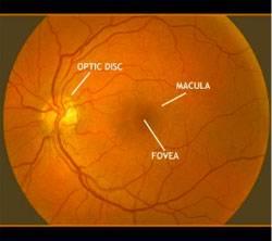 Digital Retinal Imaging eye exam burlington