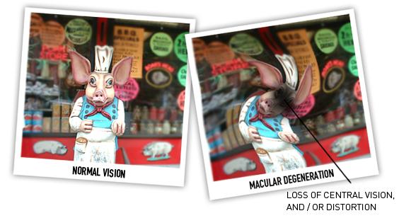 Macular Degeneration comparison images - Austin & Cedar Park, TX
