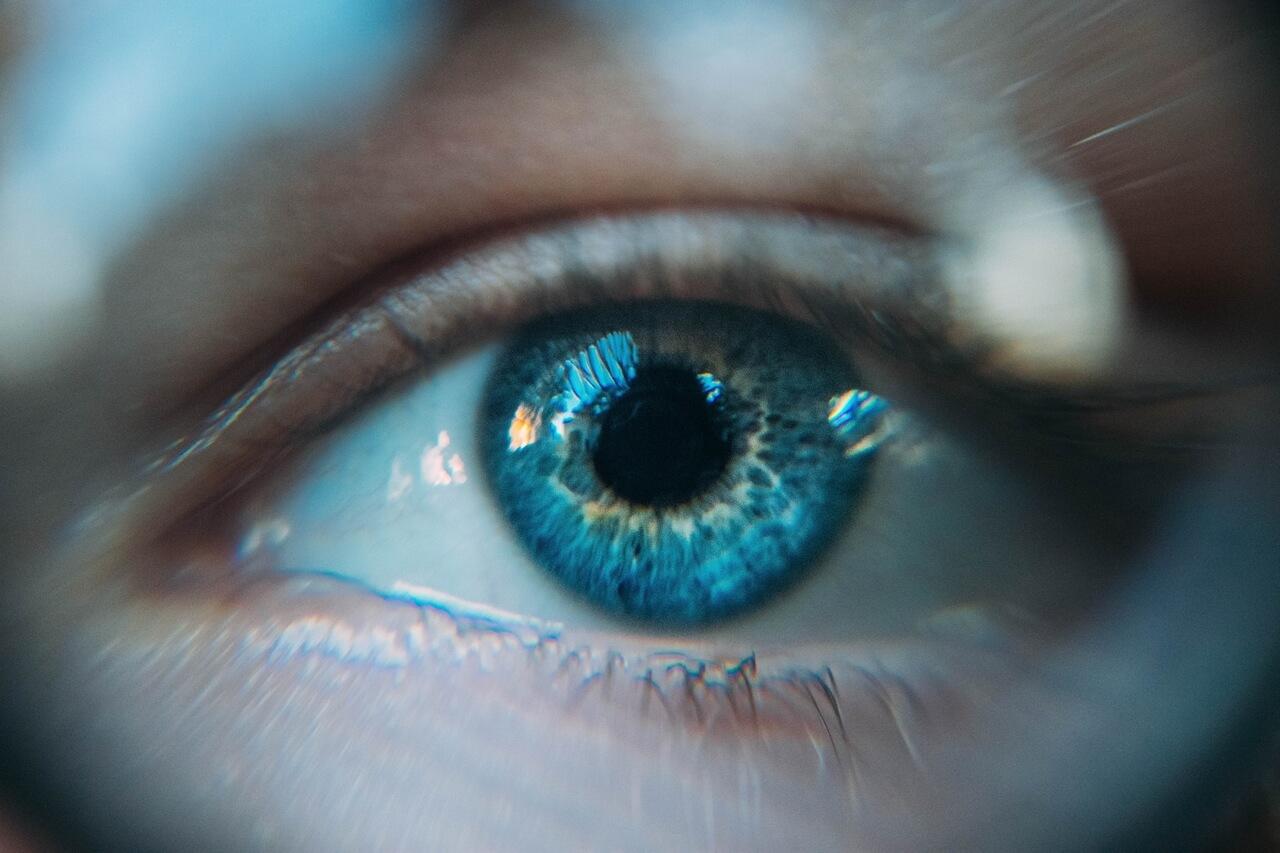 Optometrist, eye woman with eye allergy in Kissimmee, Lakeland, FL