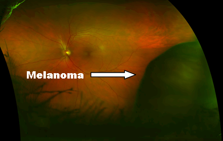 Melanoma Choroidal in Ciliary Body with label