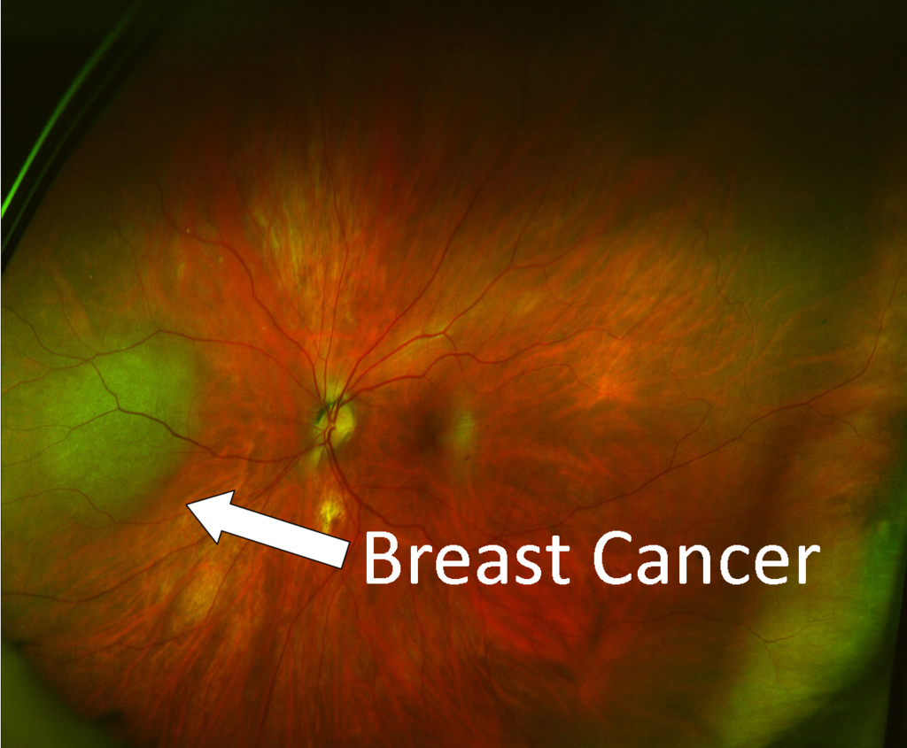 breast cancer with label