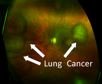 lung cancer with label1