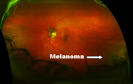 melanoma with label