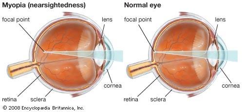 myopia 1