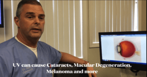 Cataracts AMD and Melanoma