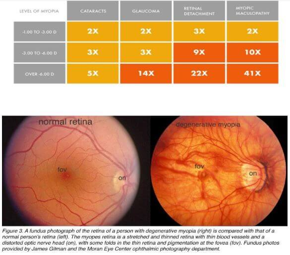 Sanghaji magas myopia tanulmány