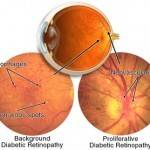 Diabetic Eye Disease 150x150