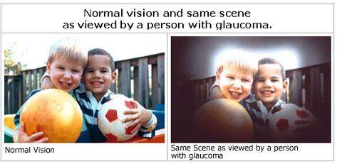glaucoma sample view