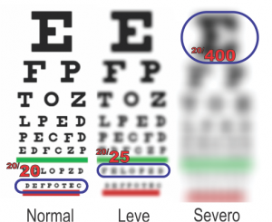 1 2 what is amblyopia spanish
