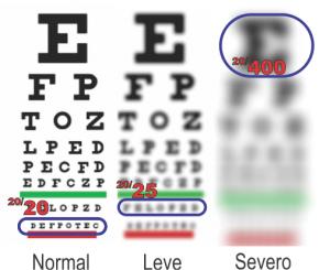 1 2 what is amblyopia spanish