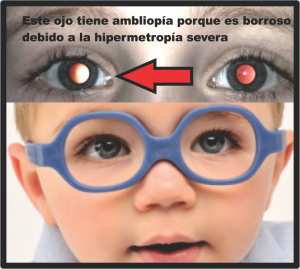 2 1 refractive amblyopia spanish