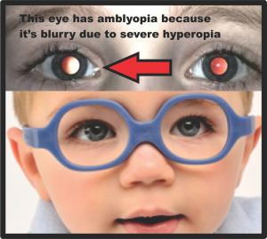 2 refractive amblyopia