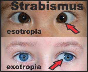 3 Strabismic Amblyopia