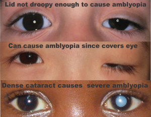 4 obstructive amblyopia