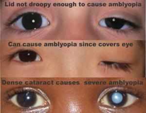 4 obstructive amblyopia