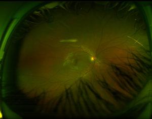 Medical image of diabetic retinopathy