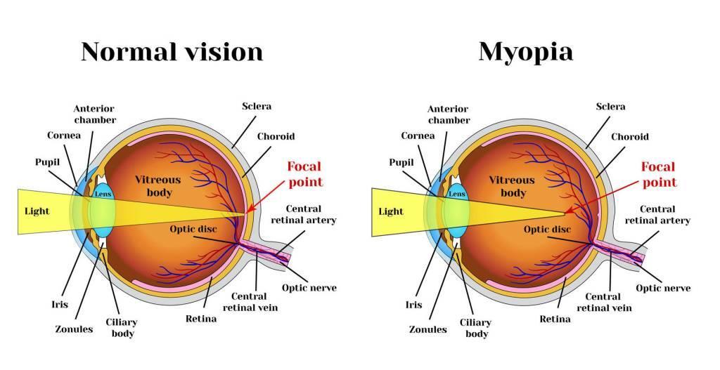 myopia (nearsightedness) explanatory graphic in Providence, RI