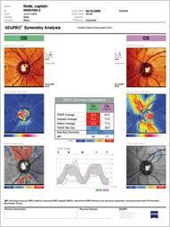 GDxPRO IntuitiveReportDesign SymmetryAnalysisReport 191