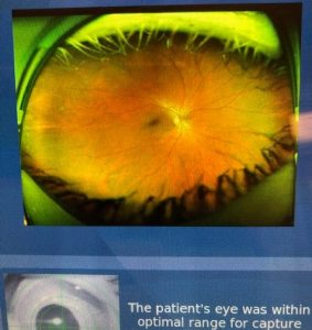 Optomap Retinal Photo