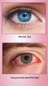 pink eye, conjunctivitis, eye doctor, eye exam, milton, ontario