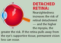 Myopia6