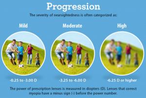 myopia progression graphic, Optometrist, eye exam, Milton, ON