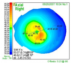 corneal topograpy result