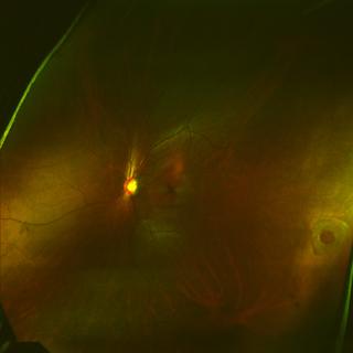 retinal hole